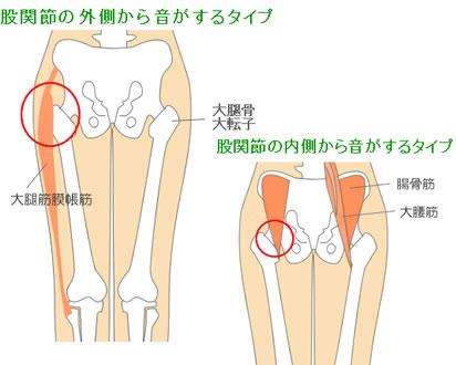 大 子 骨 大腿 転 大腿骨転子部骨折の後遺症|疼痛は残る?予後やリハビリ期間、禁忌肢位を解説 |アトム法律事務所弁護士法人